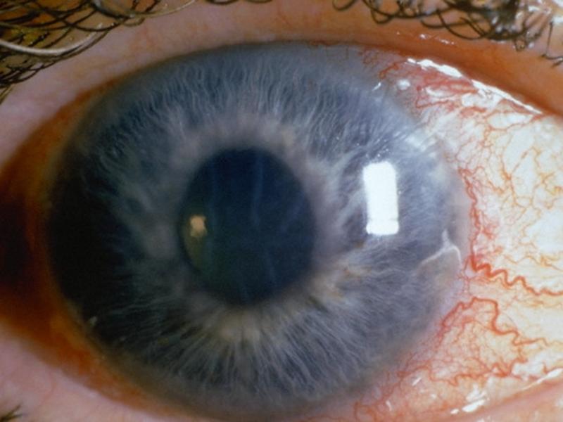 острая глаукома симптомы