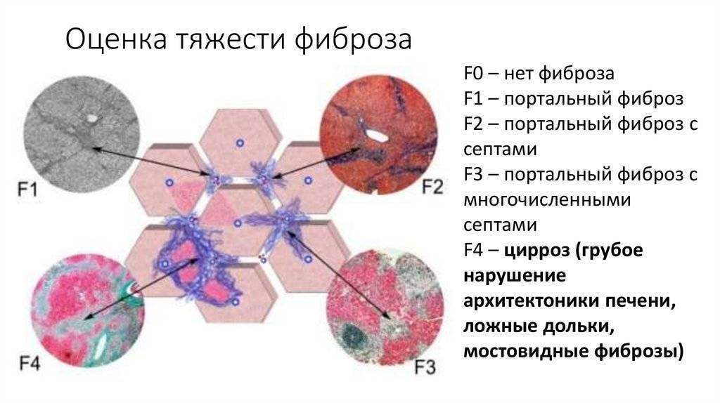 Фиброз печени: симптомы и лечение