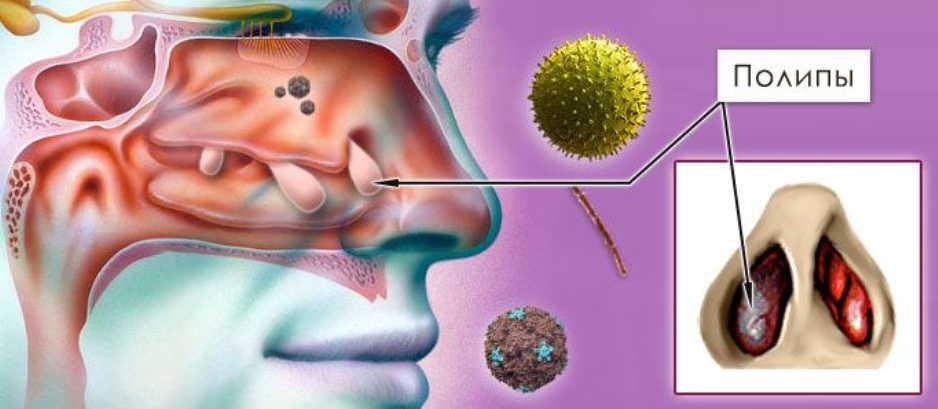 как вылечить полипы в носу без операции
