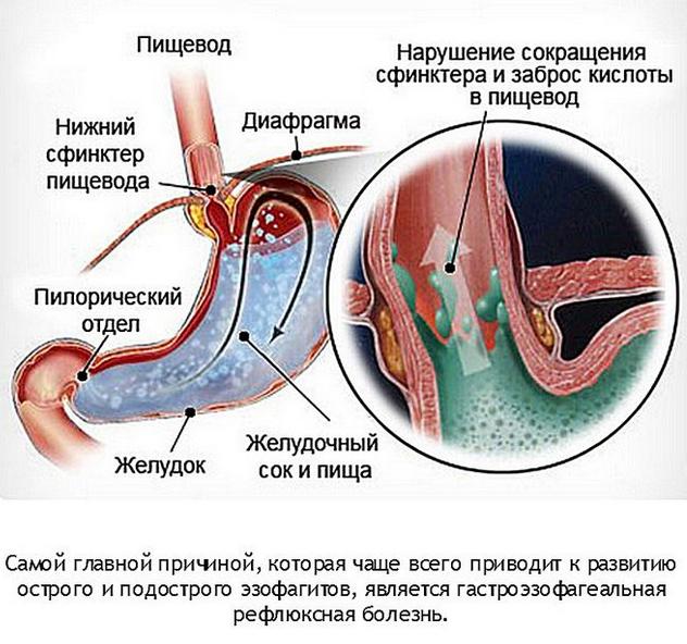При каких заболеваниях возникает желудочный кашель, методы диагностики, лечения и профилактики патологии