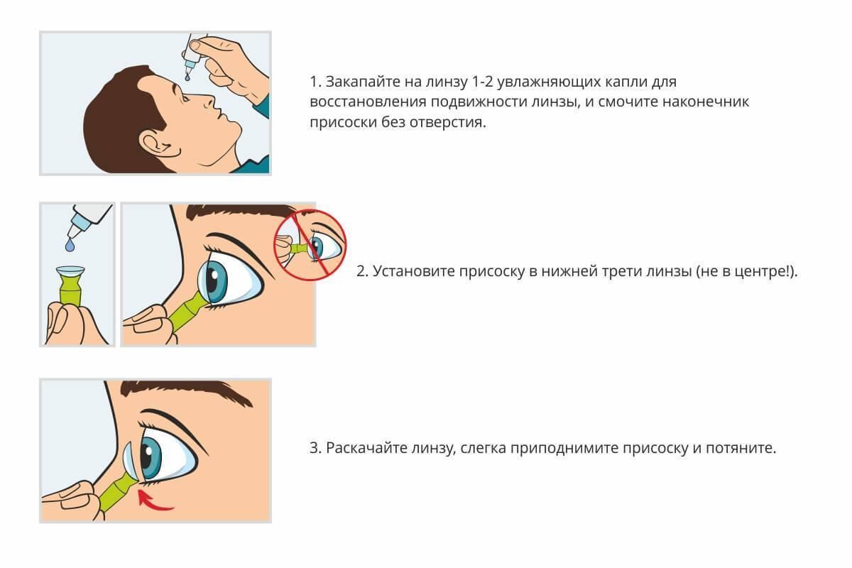 как снять контактные линзы первый раз