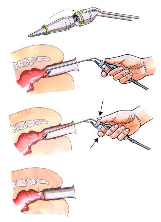 легирование геморроидальных узлов