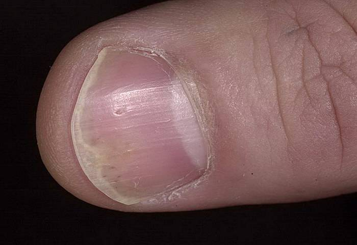 псориаз ногти