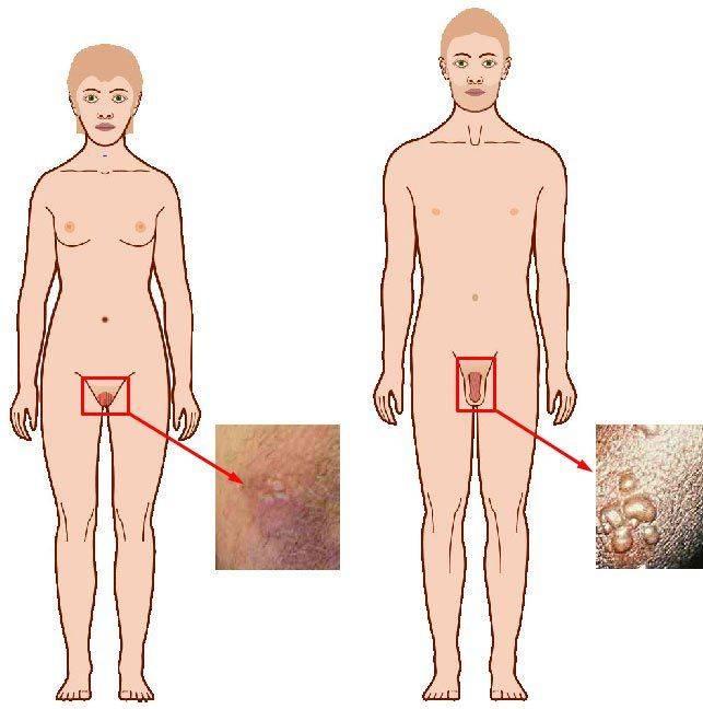 Генитальный герпес у мужчин —  витагерпавак