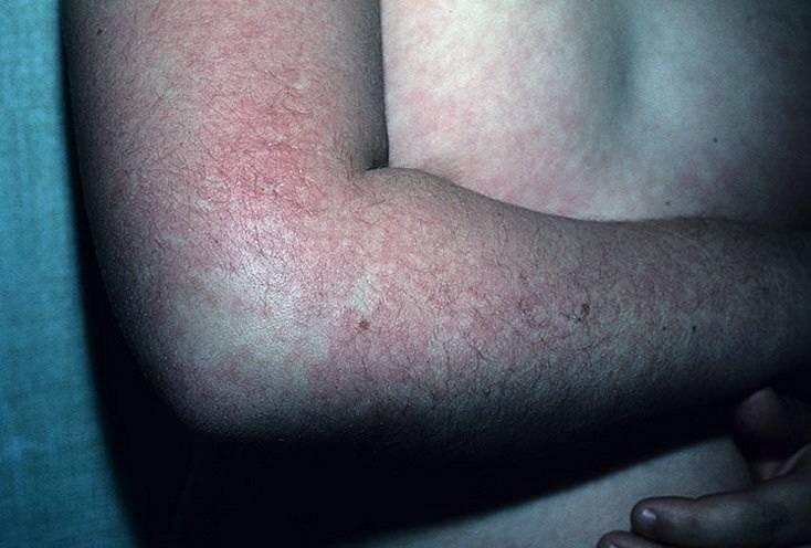 какие высыпания на коже при болезни печени
