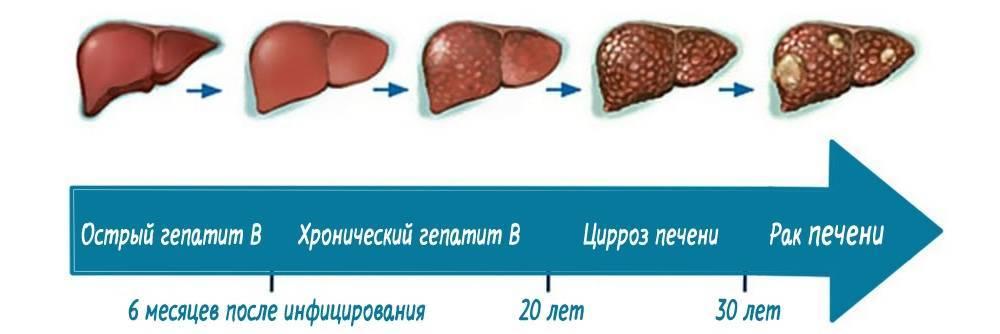бывает ли температура при гепатите с