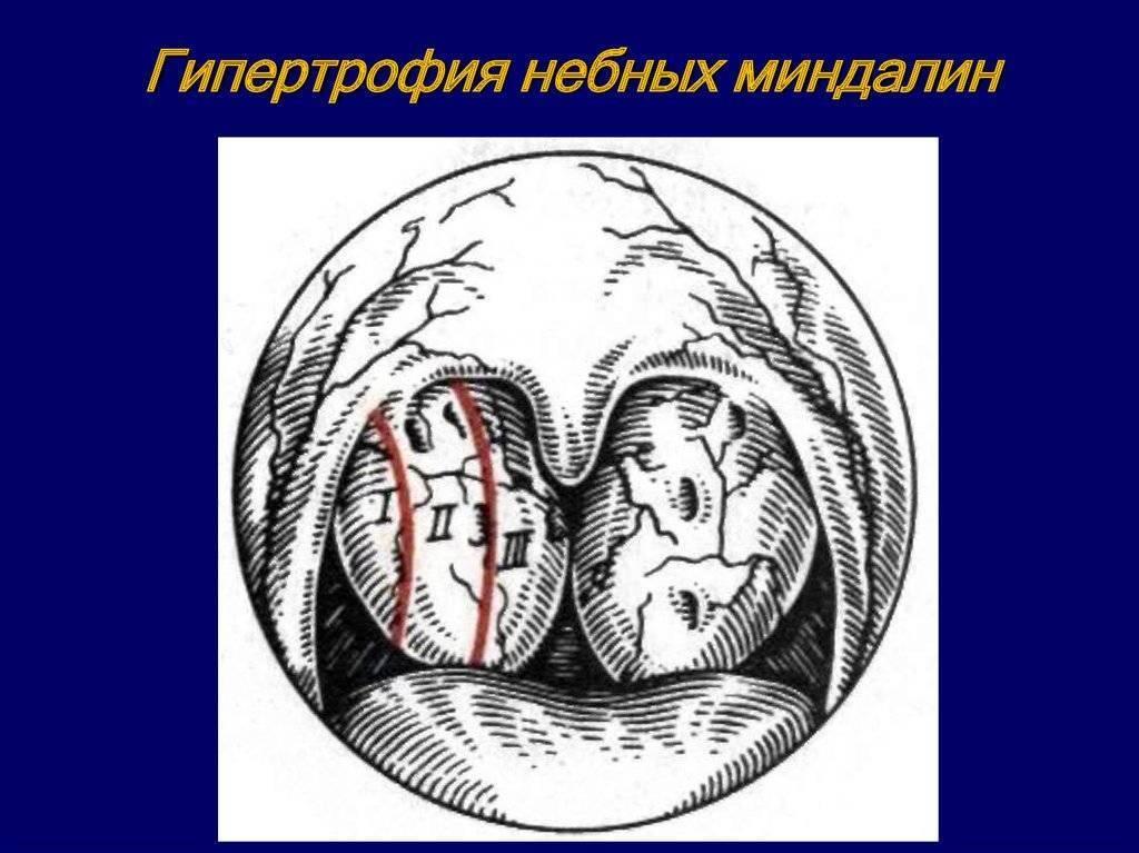 гипертрофия небных миндалин 3 степени