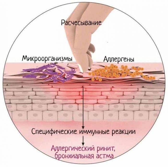 Народная медицина в борьбе с аллергическим дерматитом у взрослых и детей