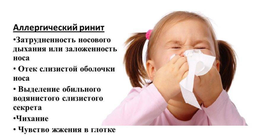 Сезонный аллергический ринит: отличие от круглогодичного, симптомы поллиноза и заложенности носа летом, лечение насморка на цветение