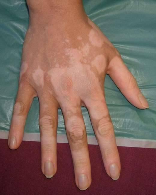 Лучевой дерматит: причины, симптомы, диагностика и лечение