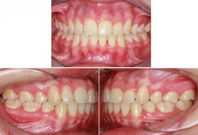 Правильный прикус зубов у человека: фото, какой должен быть, что это такое, как выглядит нормальный и идеальный, чем определить
