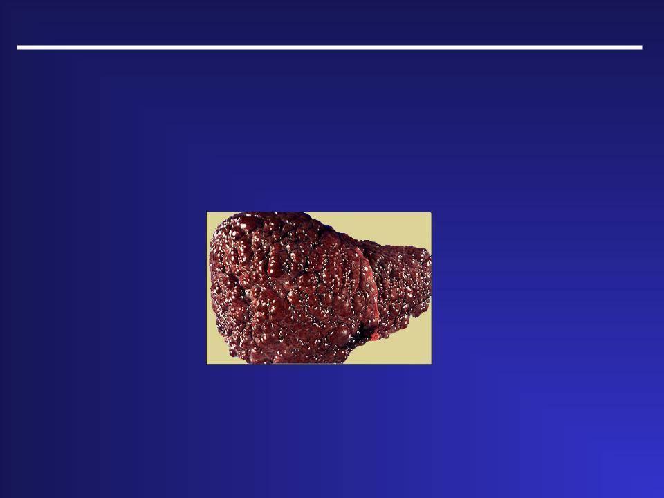 Причины возникновения и методы лечения кардиального цирроза печени