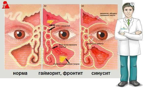 как снять отек в носу при насморке