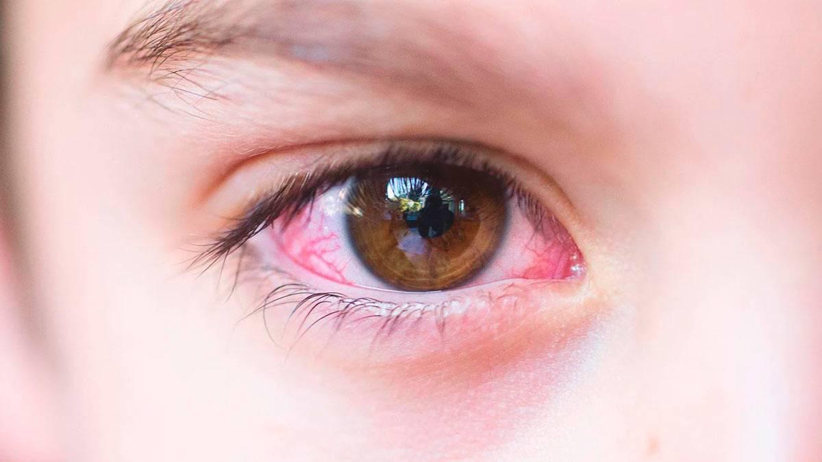 Коньюктивит у детей - виды, причины, симптомы, принципы лечения