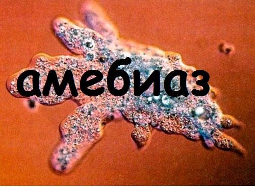 что такое амебиаз