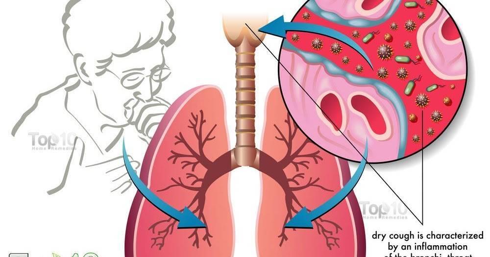 Причины и симптомы желудочного кашля