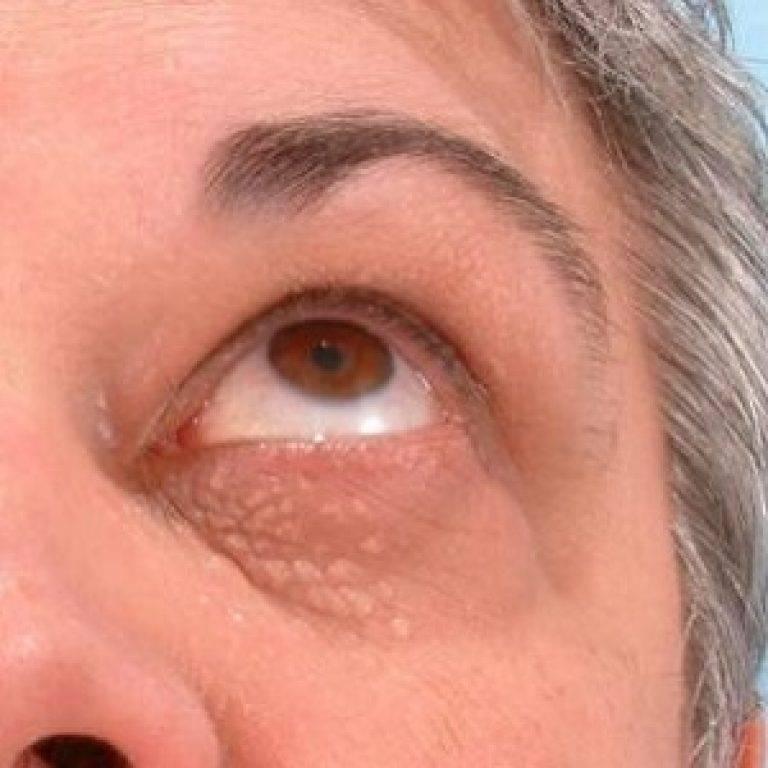 жировик на веке глаза лечение