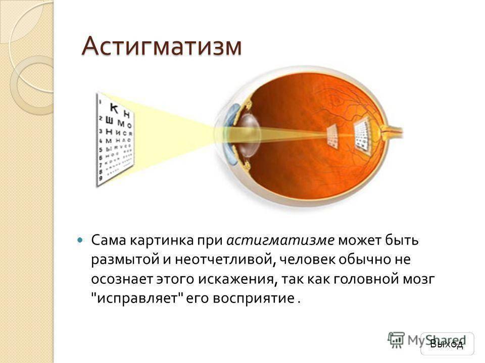сложный миопатический астигматизм