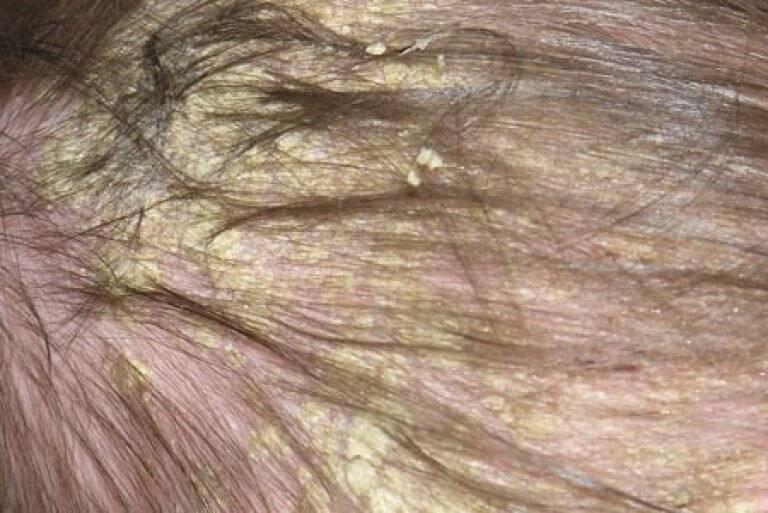 себорейный дерматит головы лечение