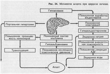 Диагностика и лечение асцита при циррозе печени