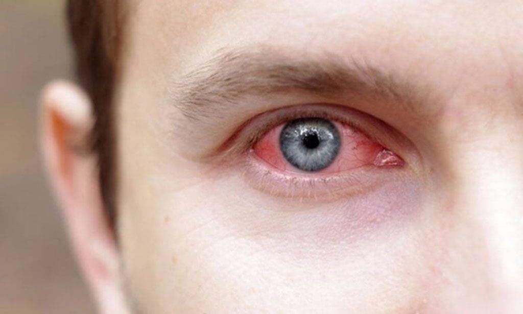 как избавиться от красных глаз в домашних условиях