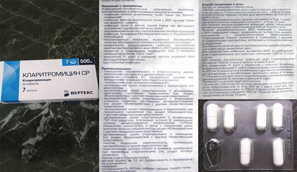антибиотики при уреаплазмозе у женщин