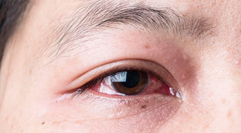 глаза красные и слезятся что делать