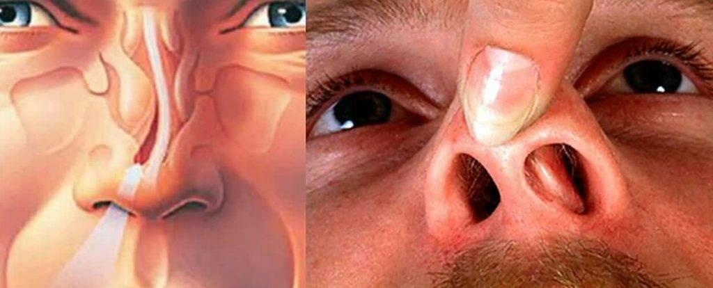 незаживающая болячка на носу