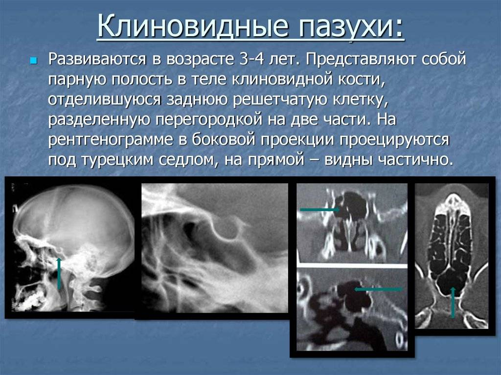 Воспаление пазух носа, симптомы и лечение околоносовых придаточных пазух