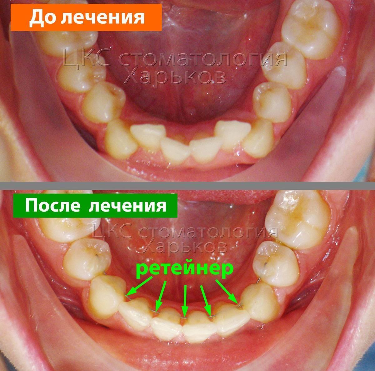Отклеился ретейнер:  стоматология и лечение зубов у беременных мам и детей