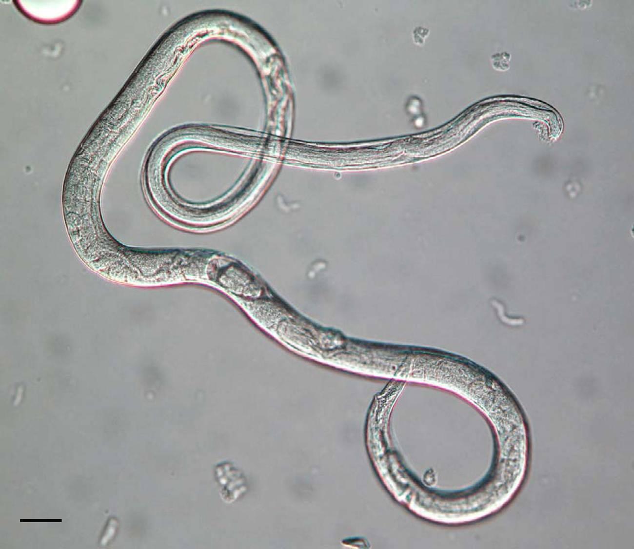 Паразитарные заболевания: гельминтоз, лямблиоз, аскаридоз. паразиты в организме человека: симптомы, диагностика, лечение паразитоза. | mosmedic.com