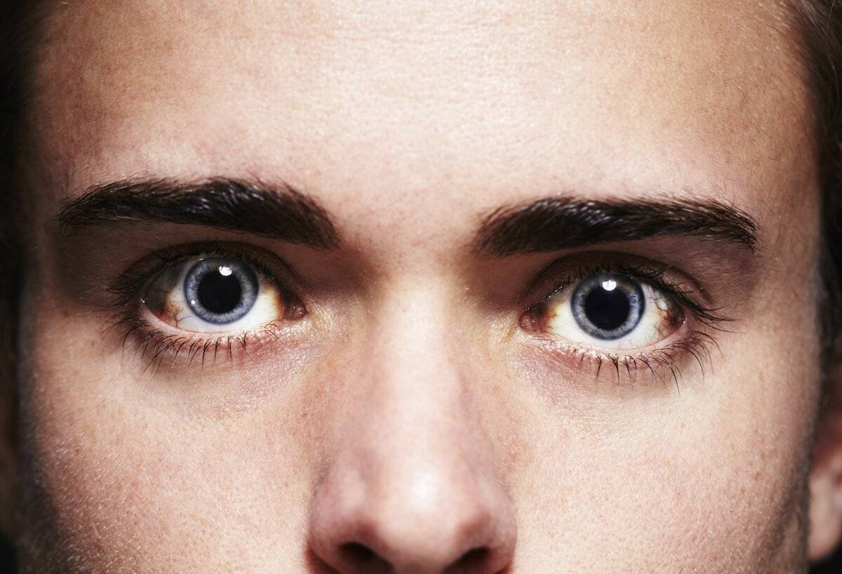 10 опасных глазных симптомов