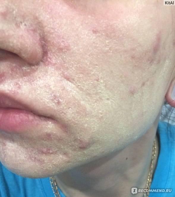 Лечение демодекоза с использованием серной мази