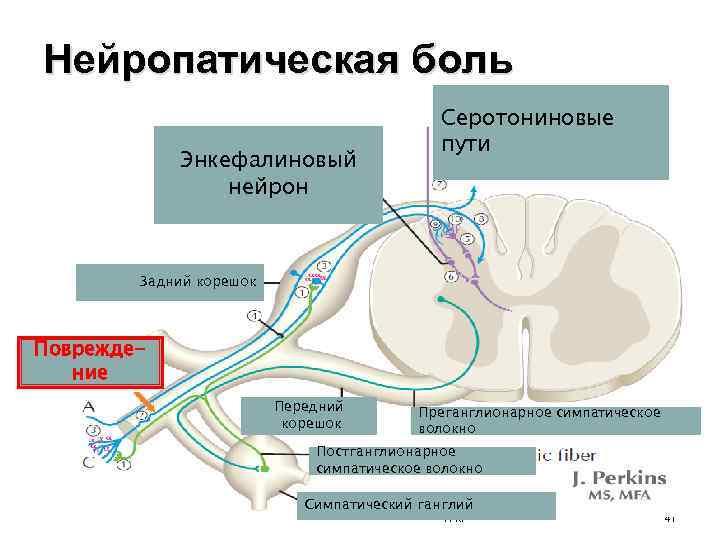 Нейропатическая боль - мозг и нервная система - 2020