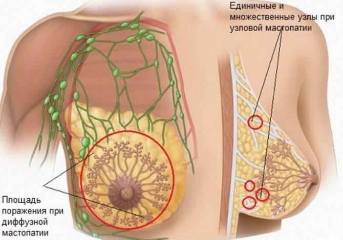 Лист лопуха от кисты молочной железы