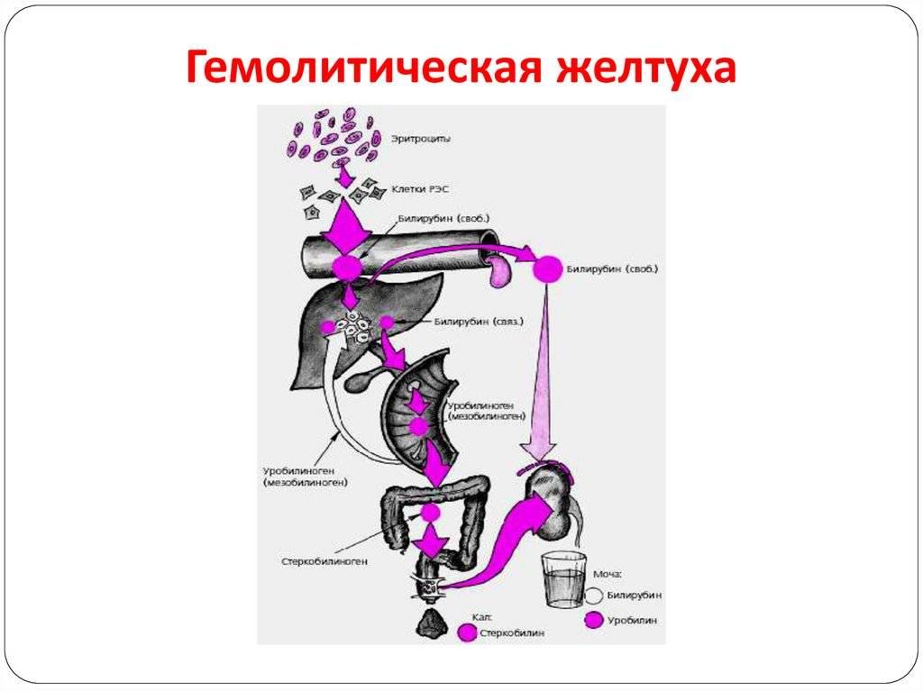 Гемолитическая болезнь новорожденных (для себя и для всех)