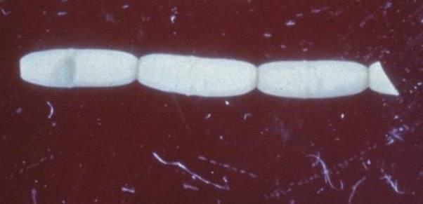 дипилидиоз у человека симптомы