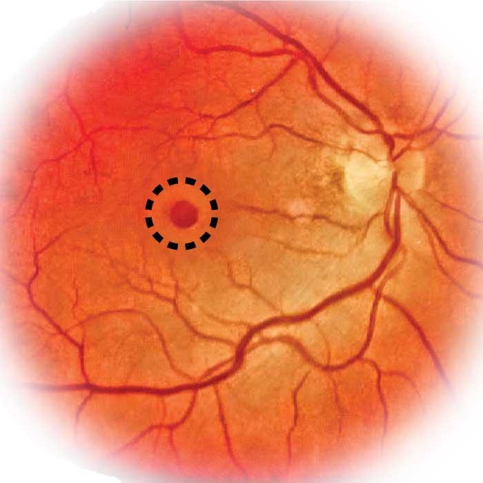 макулярный отек сетчатки глаза лечение