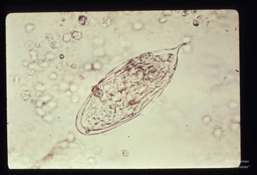 Мочеполовой шистосомоз - описание болезни