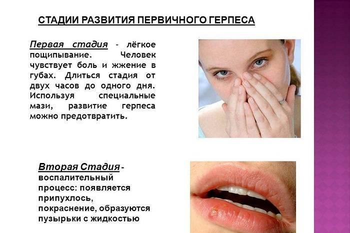 Герпес на губах: быстрое лечение в домашних условиях