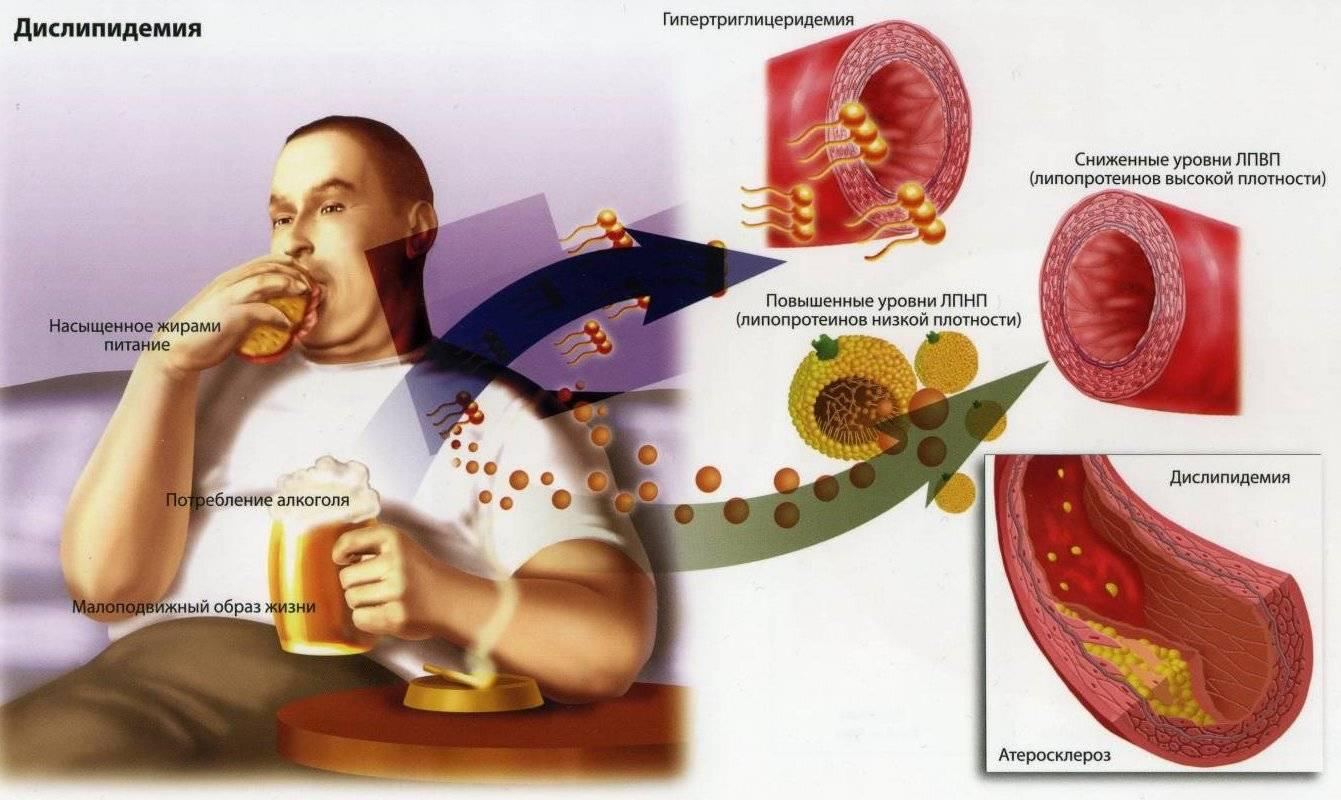 Гиперхолестеринемия диета