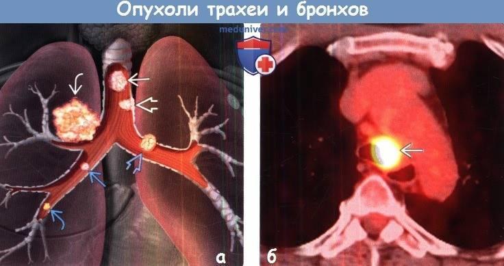 Все, что нужно знать о раке трахеи