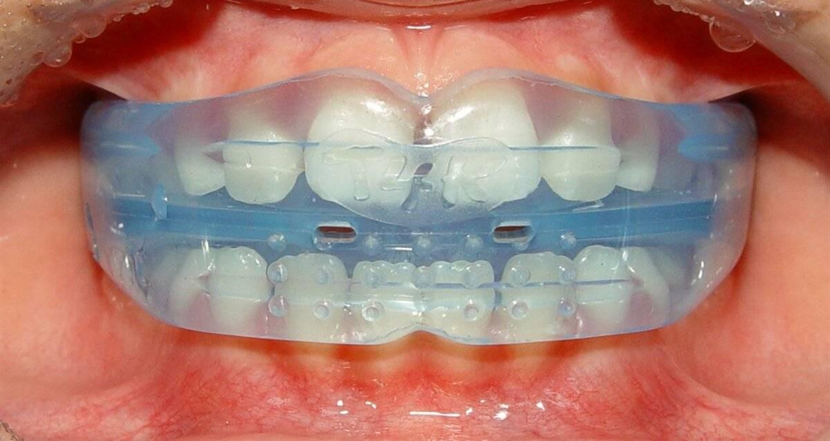 Трейнер для зубов: показания, преимущества и стоимость