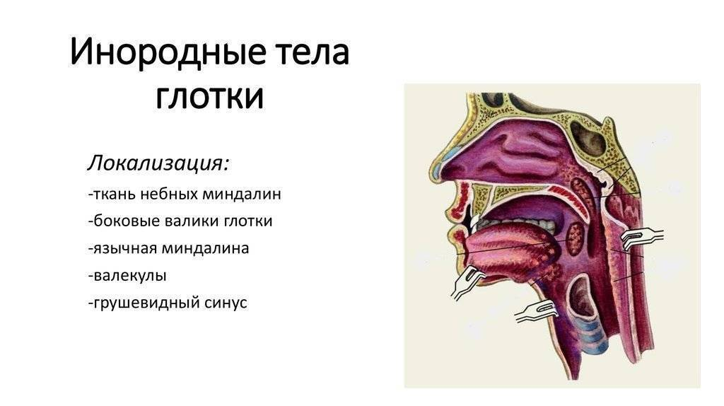 В горле как будто что-то мешает, но не болит