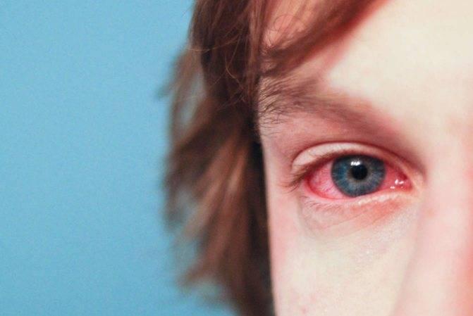 комаровский о коньюктивите у детей