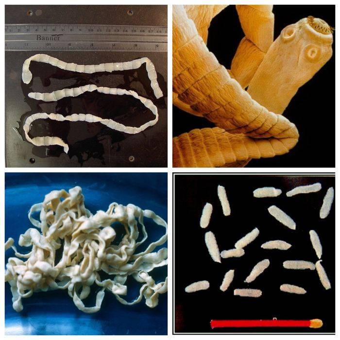 Как вывести ленточного червя из организма человека?