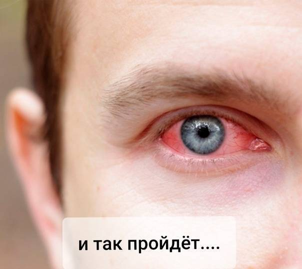 Почему глаза красные и болят после линз