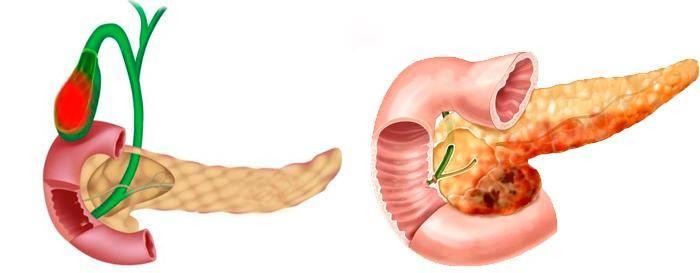холецистит и панкреатит одновременно