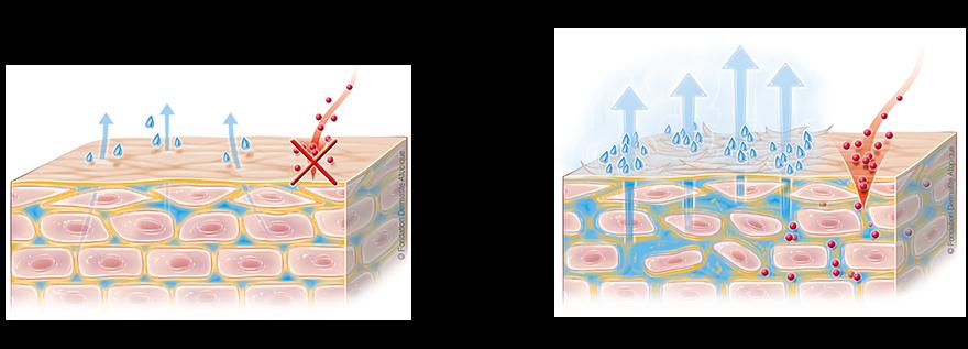 Лечение рефлюкс эзофагита