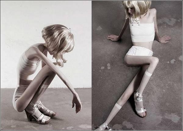 как заболеть анорексией быстро